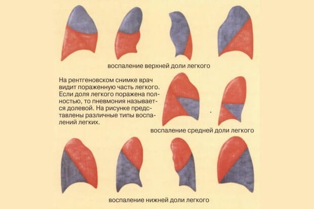 Долевое воспаление