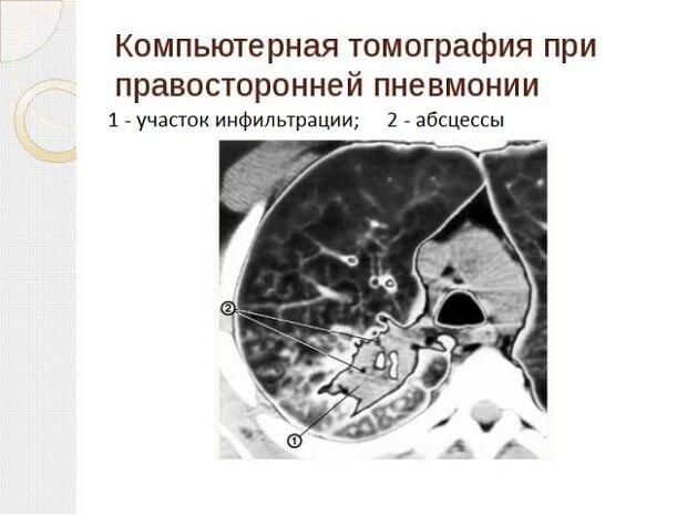 Томография пневмонии