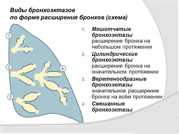 Форма расширения бронхов