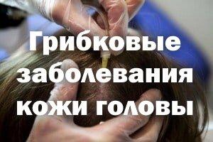 Грибковые заболевания кожи головы - признаки и лечение