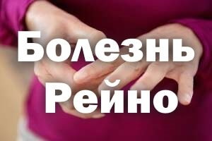 Болезнь Рейно у женщин
