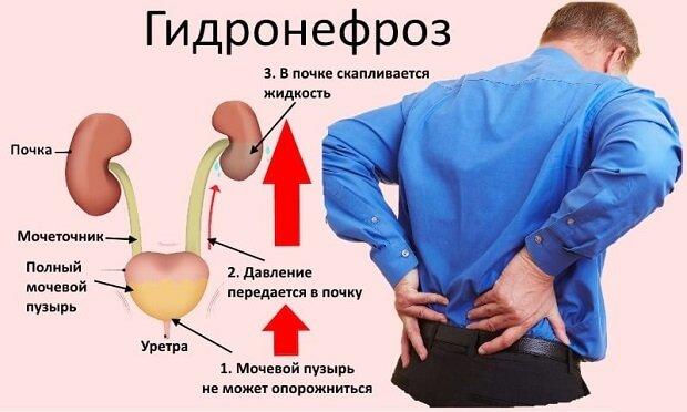 Давление жидкости в почке