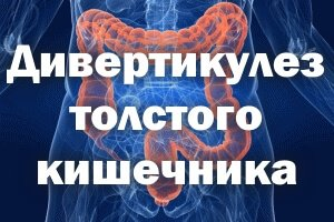 Дивертикулез толстого кишечника - симптомы и лечение