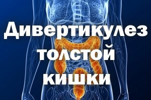 Как лечить дивертикулез толстой кишки