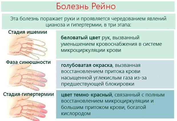 Этапы поражения рук