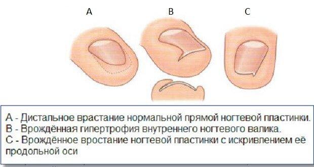 Формы врастания ногтя