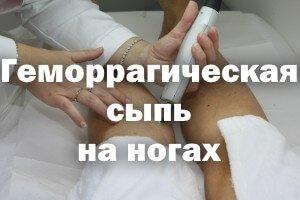 Геморрагическая сыпь на ногах у взрослого