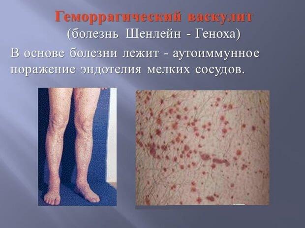 Геморрагический васкулит на ногах