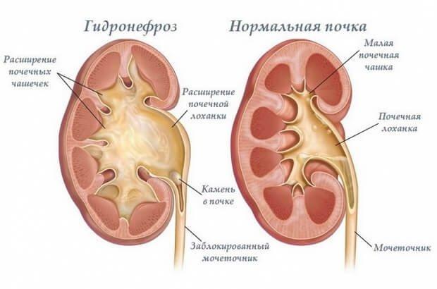 Гидронефроз и нормальная почка