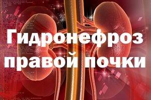 Мочевыделительные органы