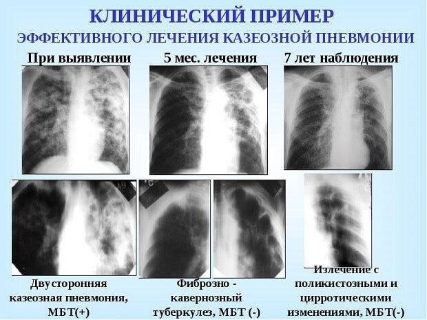 Клинический пример лечения