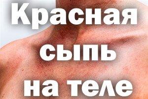 Воспаление плечевого сустава симптомы и лечение
