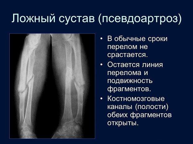 Линии перелома костей