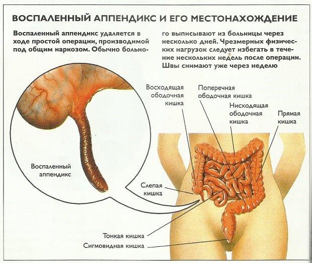 Местонахождение аппендицита