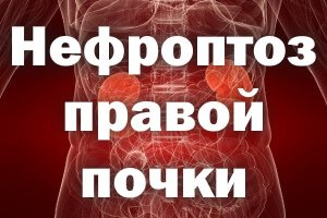 Опущение органа справа