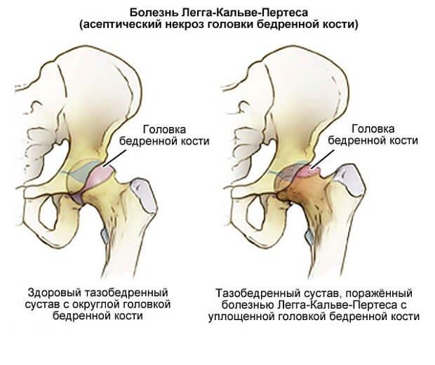 Некроз головки кости