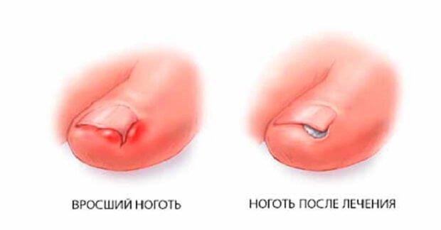 Ноготь после лечения