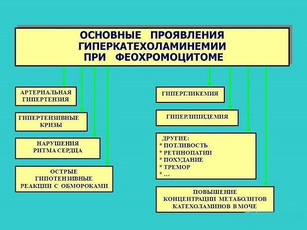 Проявления гиперкатехоламинемии