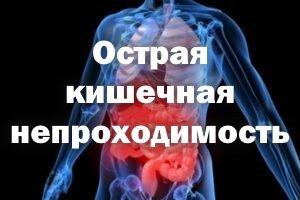 Острая кишечная непроходимость