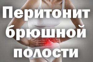 Перитонит брюшной полости