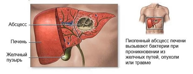 Пиогенный абсцесс