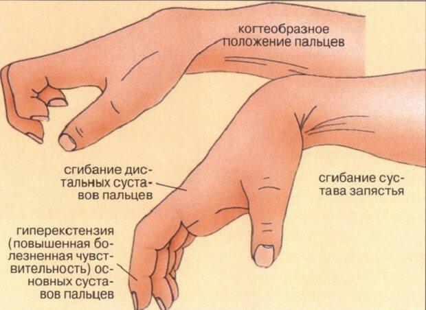редрессация контрактуры сустава