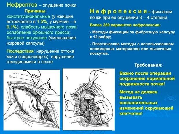Причины и последствия болезни