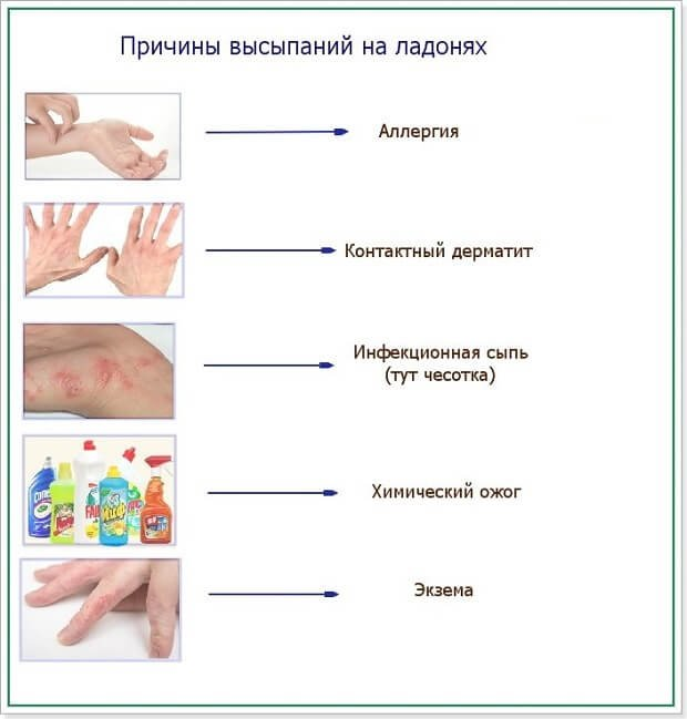 Причины кожных пятен