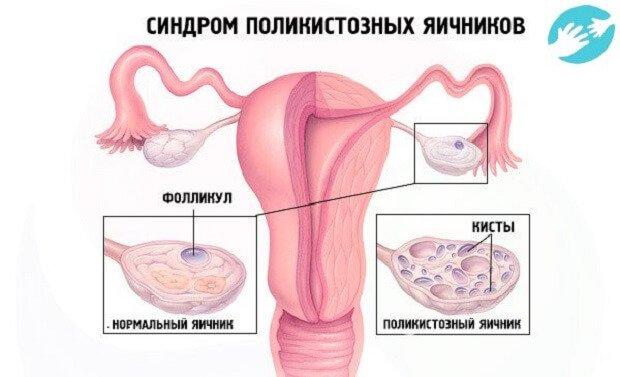Расположение фолликула в яичнике
