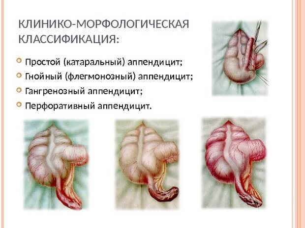 Разновидности аппендицита