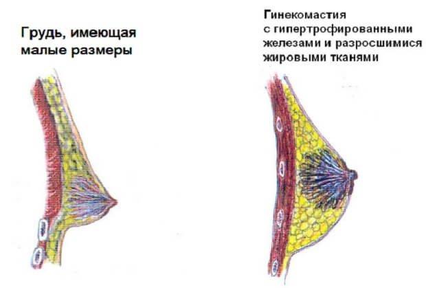 Гипертрофия желез