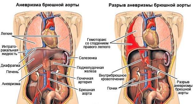 Разрыв аневризмы аорты