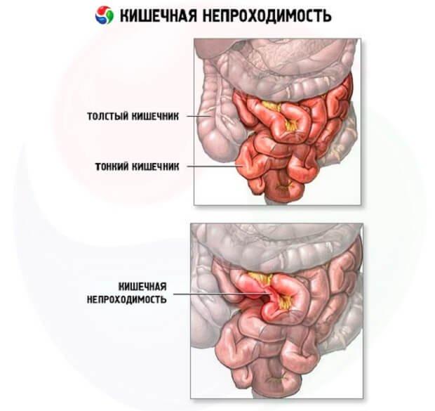 Схема кишечной непроходимости