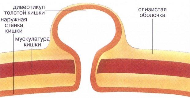 Схема толстой кишки