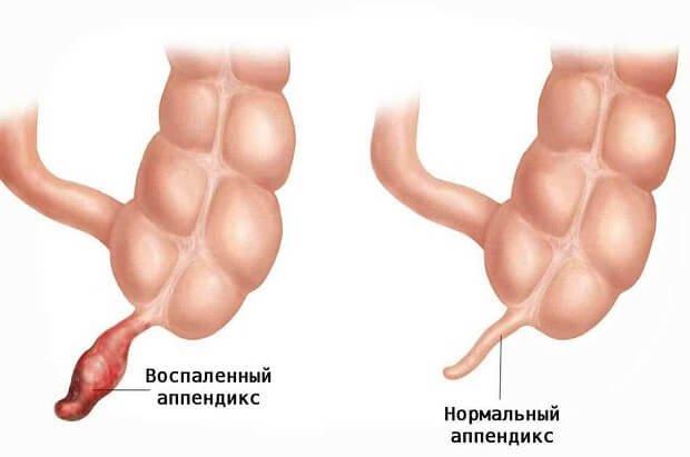 Сравнение состояния аппендикса