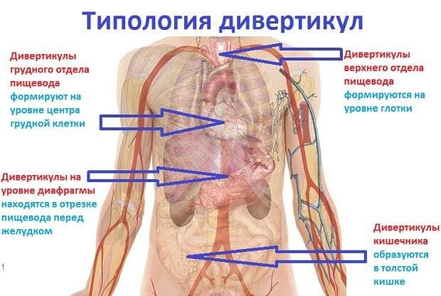 Типология дивертикул человека