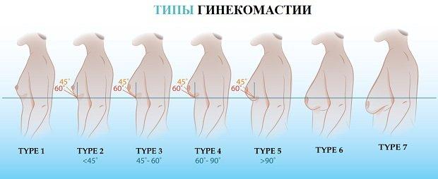 Типы гинекомастии