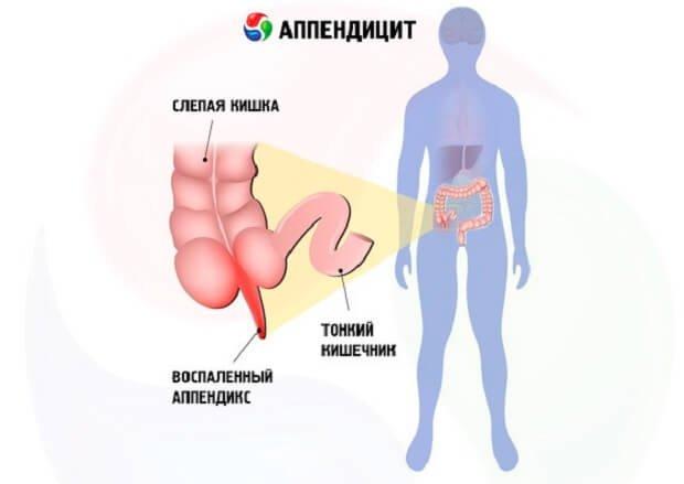 Воспаленный аппендикс человека