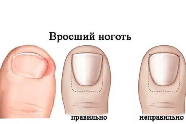 Вросший ноготь у человека