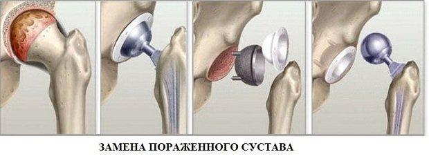 Замена сустава кости
