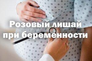 Розовый лишай при беременности