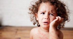 Ребенок плачет и чешется