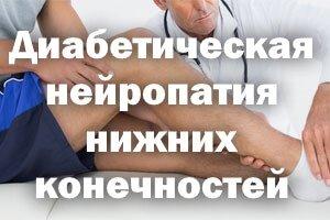 Диабетическая нейропатия нижних конечностей