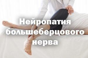 Нейропатия большеберцового нерва