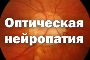 Оптическая нейропатия