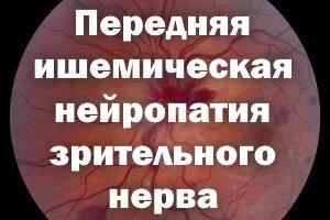 Передняя ишемическая нейропатия зрительного нерва