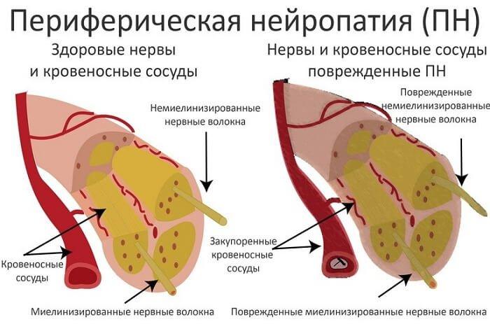 Периферический вид нейропатии