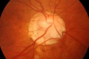 Снимок нервов глаз
