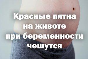 Красные пятна на животике при беременности чешутся