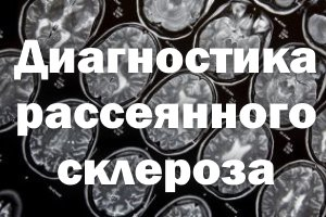Рассеянный склероз - диагностические меры